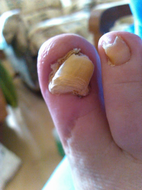 how to fix an infected toe