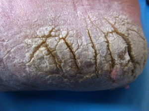 Calluses, Heel fisures, Corns, Melanoma, Tyloma, porokeratosis, IPK, intractable plantar keratosis, Painful callus, callus treatment