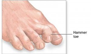 Painful Toes, Corns, Hammer Toes