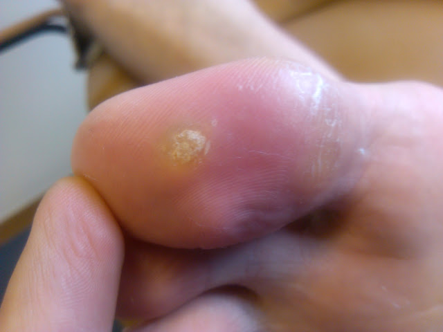 Foot Warts Mosaic Wart Wart Treatments Treat Warts