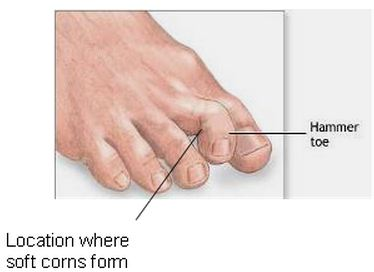 how to break your foot with a hammer